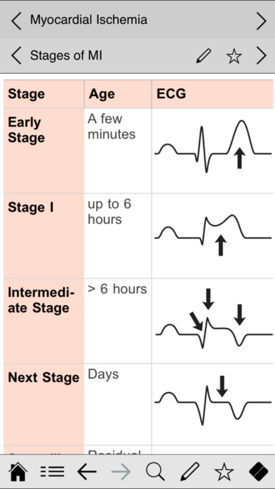 Ecg Pocketcards App Insight & Download. Rottweiler Signs Of Stroke. Functioning Depression Signs. Islam Signs. White Signs. Amazing Signs Of Stroke. Red Spots Signs. Flu Symptoms Signs. Rare Signs