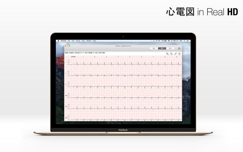 2016年1月8日Macアプリセール アイコンドックアプリ「DockShelf」が値下げ!