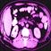 CT Scan Interpreter app icon