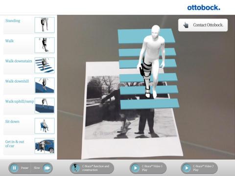 C-Brace Ottobock Augmented Reality