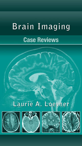 Brain Imaging Case Review