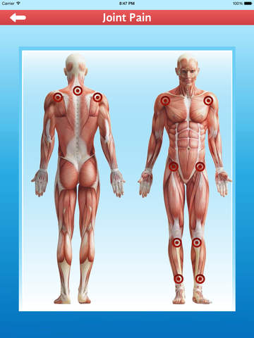 Cupping Therapy - Al Hijamah Preventive Medicine