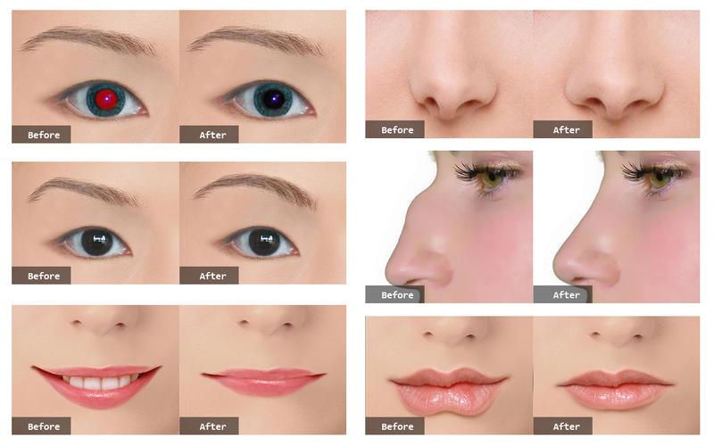photo plastic surgery professional by phoenix nirvana app info