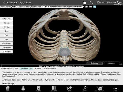 Skeleton Anatomy Atlas: Essential Reference for Students and Healthcare Professionals screenshot