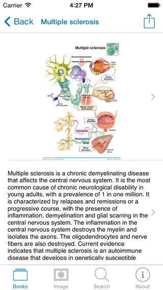 Miniatlas Central Nervous System iPhone Screenshot 5