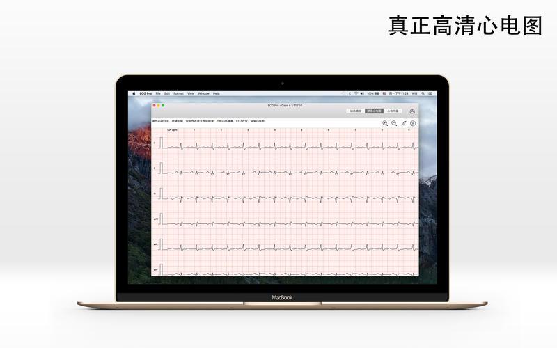 心电图案例库(ECG) for Mac
