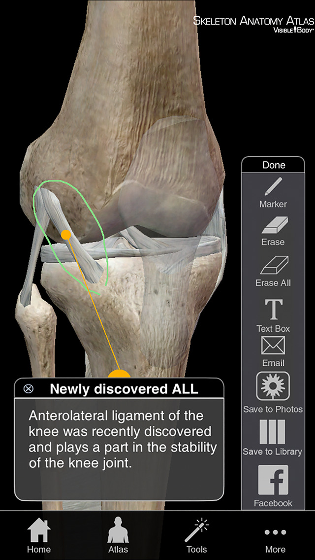 Skeleton Anatomy Atlas: Essential Reference for Students and Healthcare Professionals screenshot 4