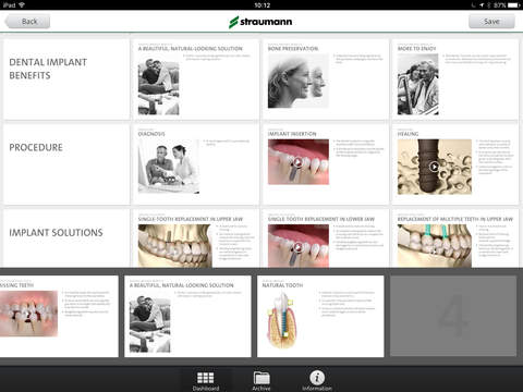 Straumann® Patient Education App - náhled